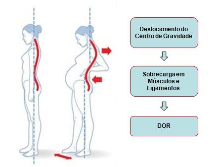 centro de gravidade da gestante - mudanças físicas na gravidez